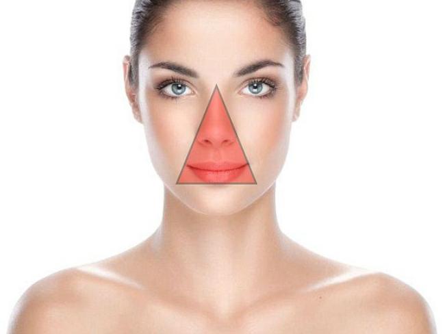 Cara Menghilangkan Jerawat Di Hidung Bagian Luar