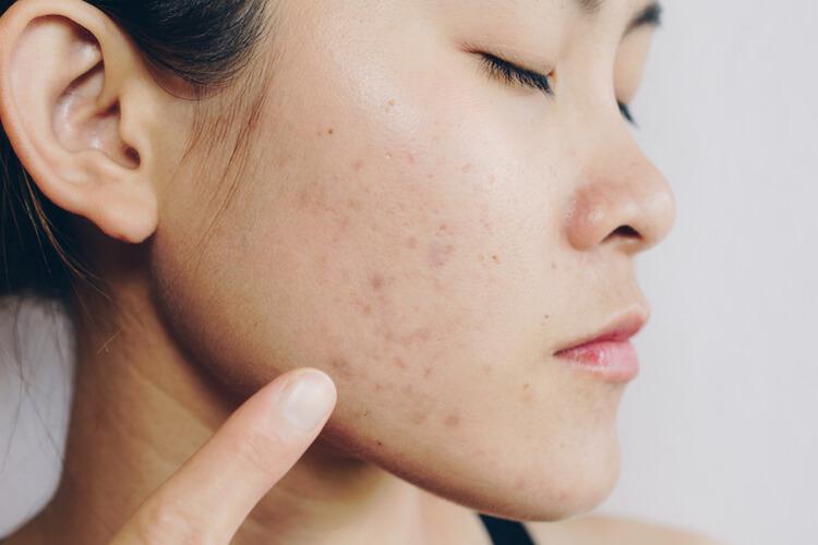 Perbedaan Bekas Jerawat Post Inflammatory Hyperpigmentation Dan Post Inflammatory Erythema Yang Perlu Diketahui Para Wanita Soco By Sociolla