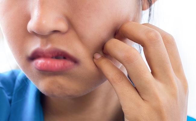 Obat Jerawat Yang Tumbuh Dileher Dan Terasa Gatal