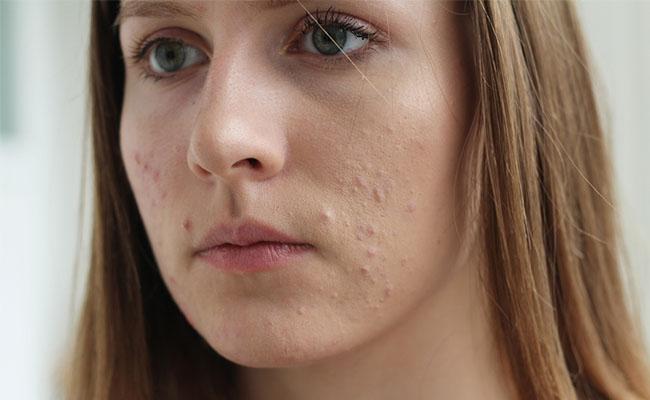 5 Manfaat Kandungan Air Kelapa Di Dalam Produk Skin Care Beauty Journal